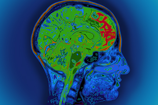 Brain scan color red green MRI